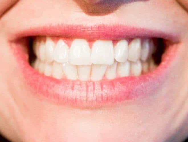 Un sourire éclatant