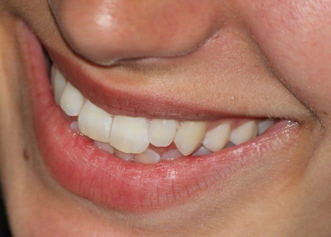 joli sourire avec des dents blanches