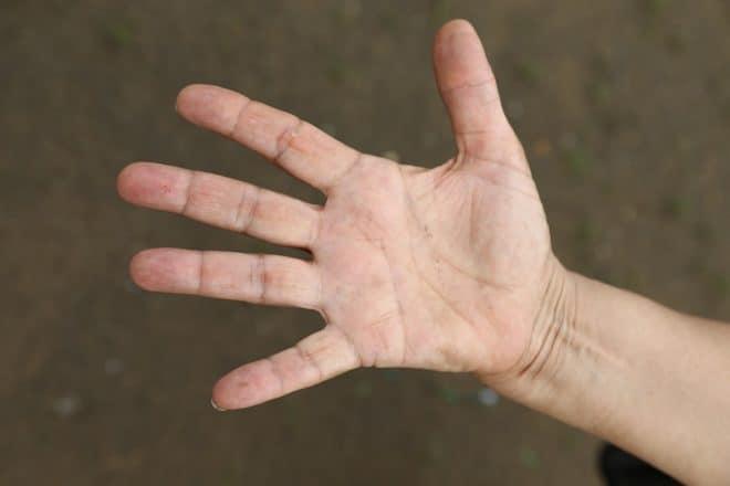 les rhumatismes touchent souvent les mains